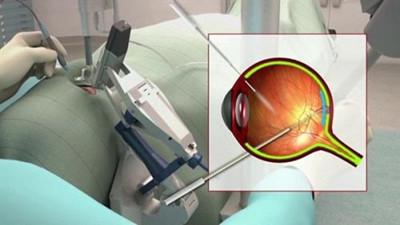 全球首例机器人视网膜手术 比人还靠谱